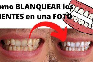 blanqueador de dientes